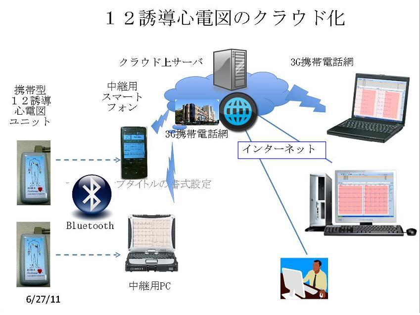 cloudECG.jpg